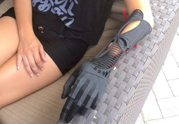 3D printing prosthetics can be cheap, comfortable, and beautiful.